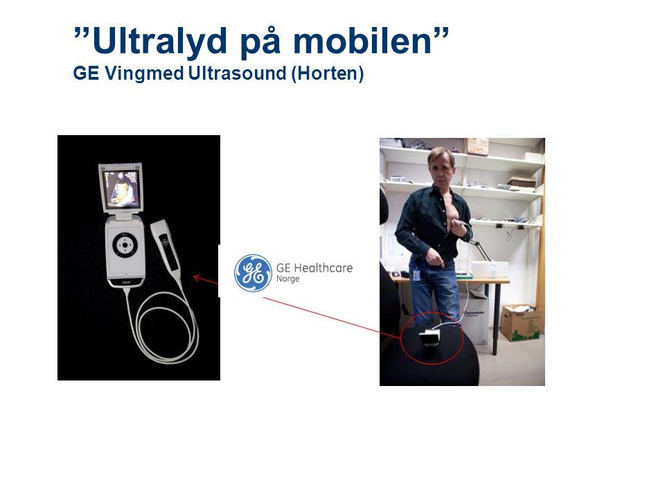 """""""Ultralyd på mobilen"""" GE Vingmed Ultrasound (Horten)"""