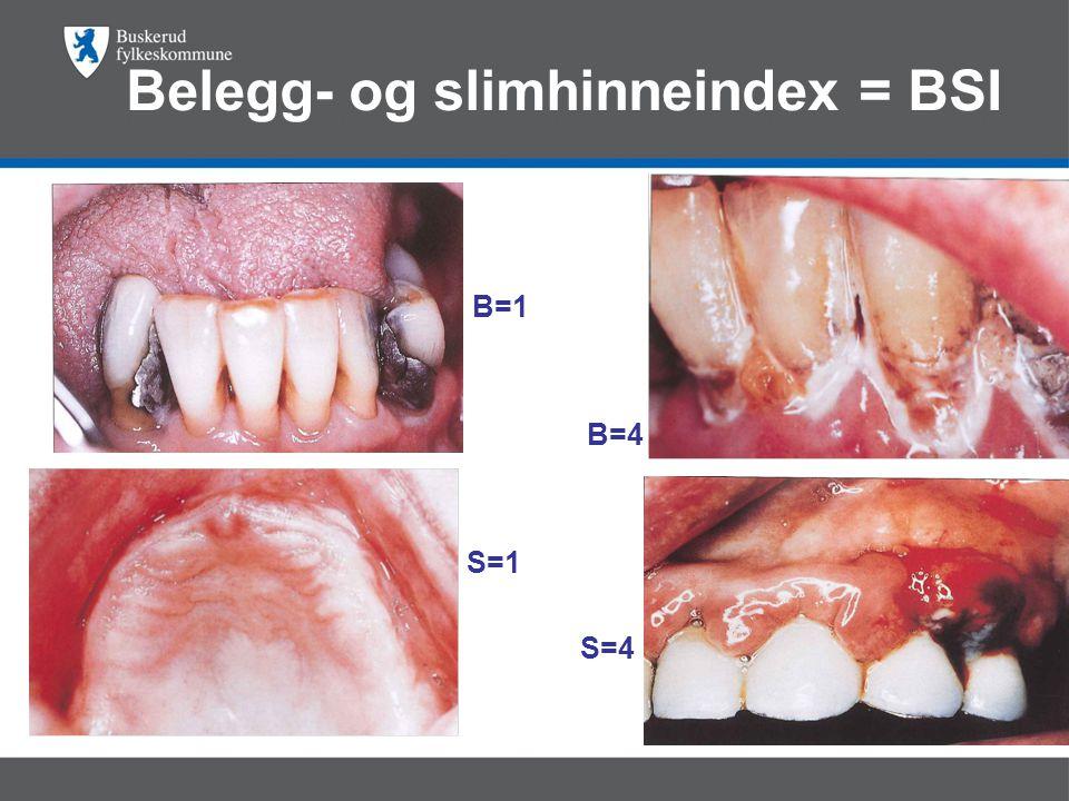 Belegg- og slimhinneindex = BSI • B=1 B=4 S=1 S=4