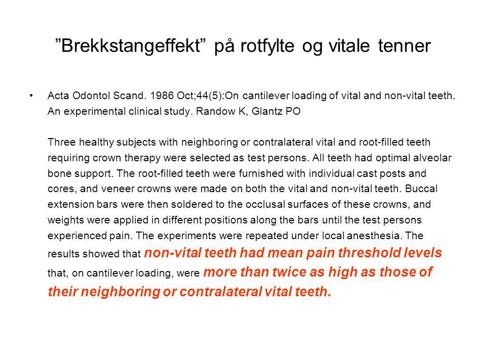 """""""Brekkstangeffekt"""" på rotfylte og vitale tenner •Acta Odontol Scand. 1986 Oct;44(5):On cantilever loading of vital and non-vital teeth. An experimenta"""