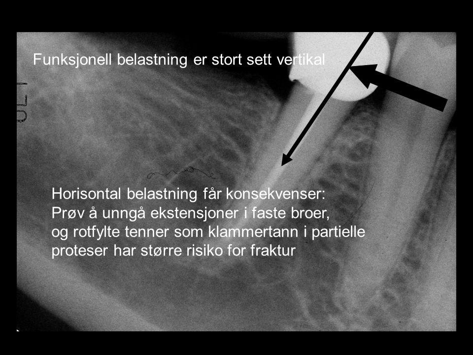 Funksjonell belastning er stort sett vertikal Horisontal belastning får konsekvenser: Prøv å unngå ekstensjoner i faste broer, og rotfylte tenner som klammertann i partielle proteser har større risiko for fraktur