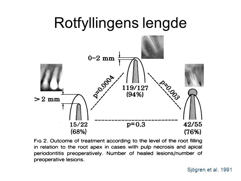 Rotfyllingens lengde Sjögren et al. 1991