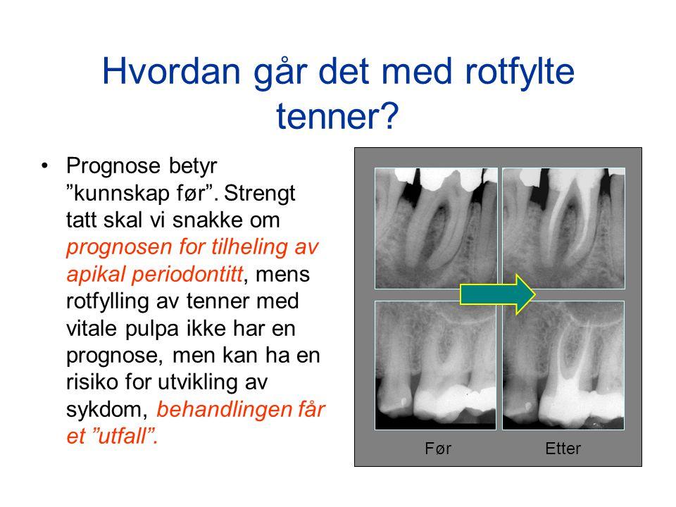 """Hvordan går det med rotfylte tenner? •Prognose betyr """"kunnskap før"""". Strengt tatt skal vi snakke om prognosen for tilheling av apikal periodontitt, me"""