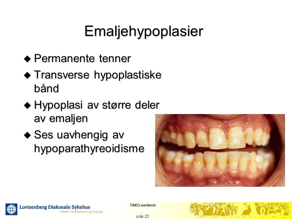 TAKO-senteret, side 23 Emaljehypoplasier  Permanente tenner  Transverse hypoplastiske bånd  Hypoplasi av større deler av emaljen  Ses uavhengig av