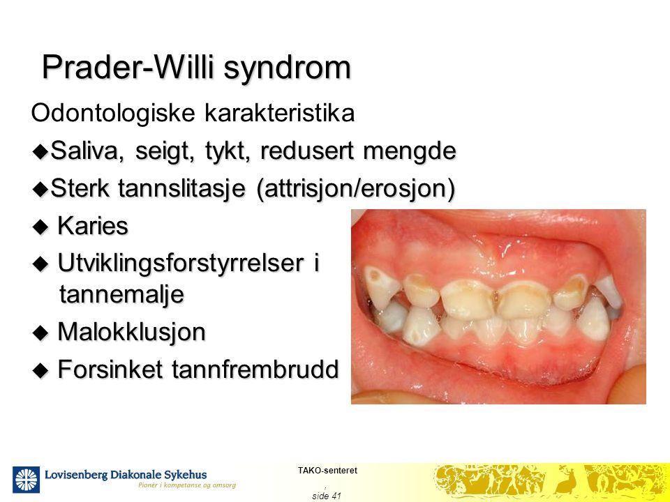 TAKO-senteret, side 41 Prader-Willi syndrom Odontologiske karakteristika  Saliva, seigt, tykt, redusert mengde  Sterk tannslitasje (attrisjon/erosjo