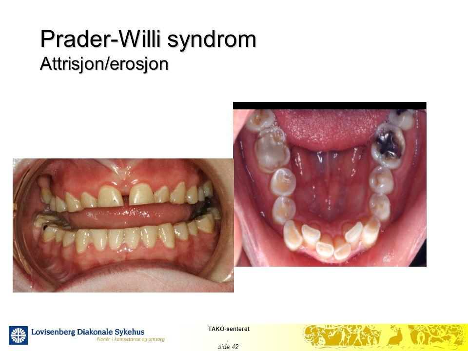 TAKO-senteret, side 42 Prader-Willi syndrom Attrisjon/erosjon