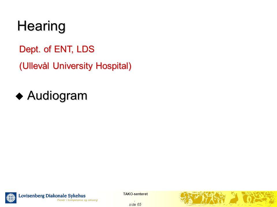 TAKO-senteret, side 65 Hearing Audiogram  Audiogram Dept. of ENT, LDS (Ullevål University Hospital)
