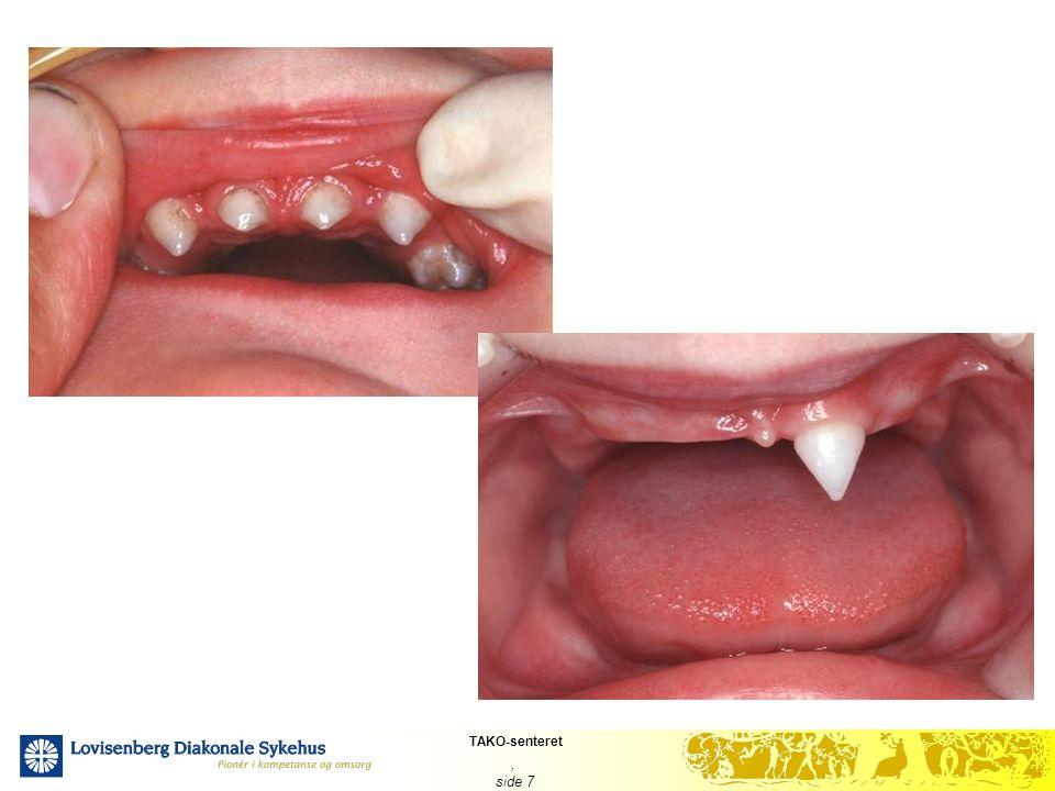 TAKO-senteret, side 28 Dentinogenesis imperfecta-DI I litteraturen 28-50 % DI Ofte høyere frekvens ved de alvorlige formene av OI I undersøkelsesgruppen 18,5 % DI