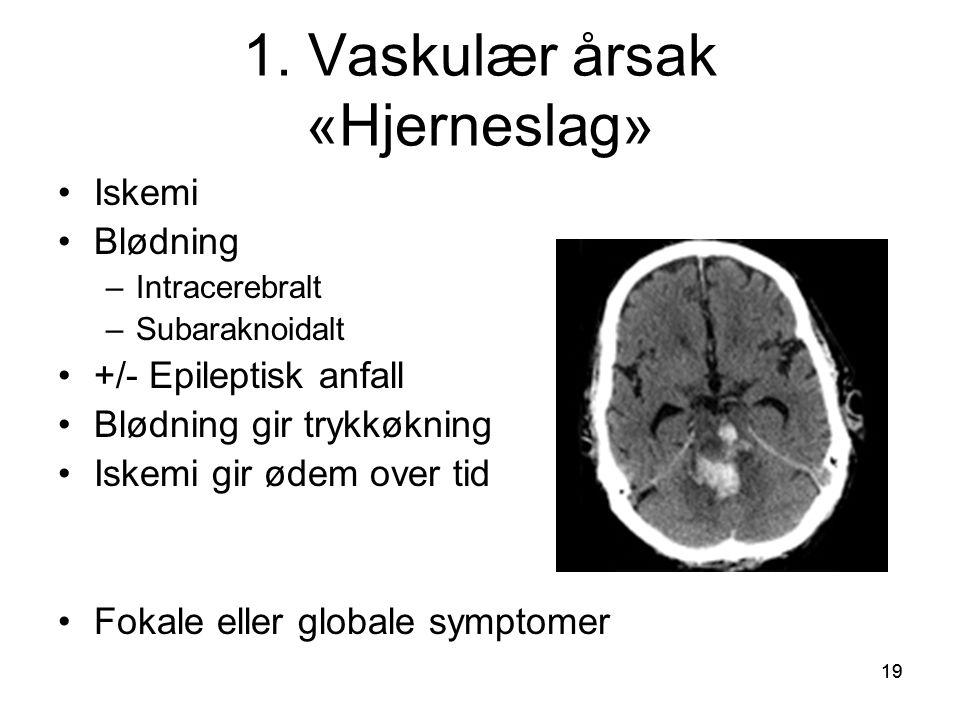 19 1. Vaskulær årsak «Hjerneslag» •Iskemi •Blødning –Intracerebralt –Subaraknoidalt •+/- Epileptisk anfall •Blødning gir trykkøkning •Iskemi gir ødem