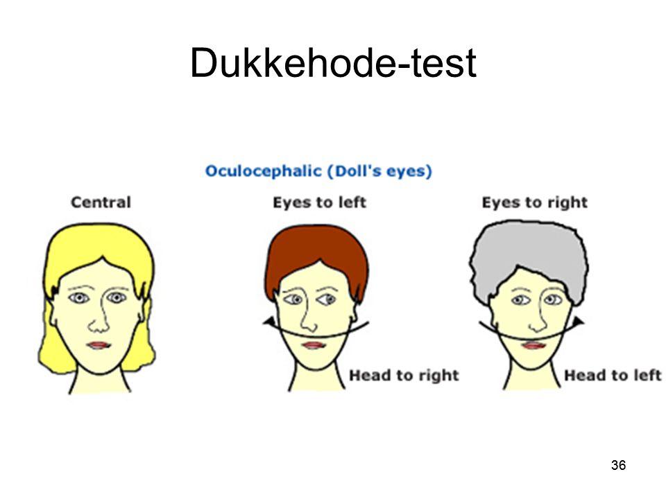 36 Dukkehode-test