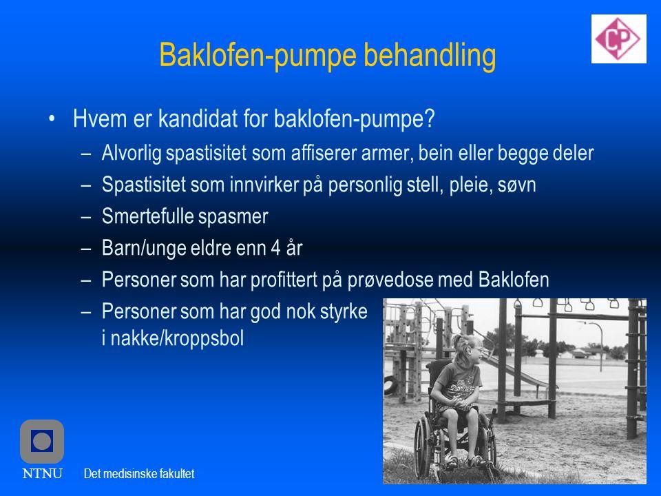NTNU Det medisinske fakultet Baklofen-pumpe behandling •Hvem er kandidat for baklofen-pumpe.