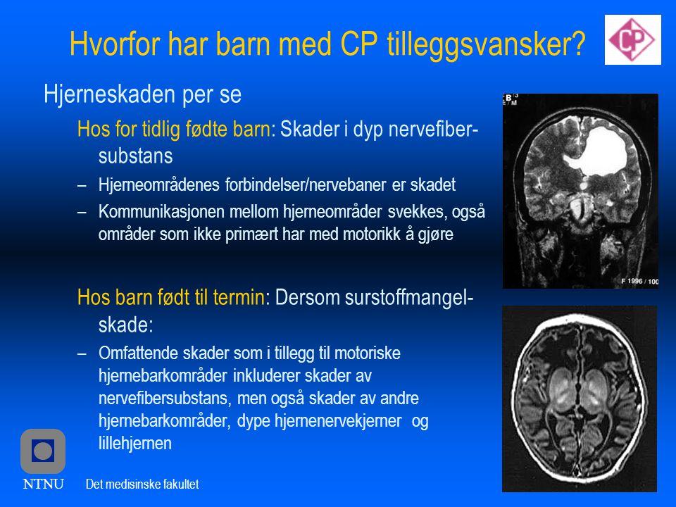 NTNU Det medisinske fakultet Hvorfor har barn med CP tilleggsvansker.