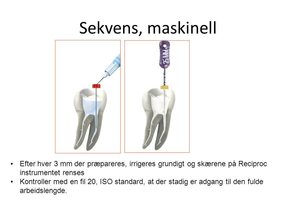 Sekvens, maskinell •Efter hver 3 mm der præpareres, irrigeres grundigt og skærene på Reciproc instrumentet renses •Kontroller med en fil 20, ISO stand