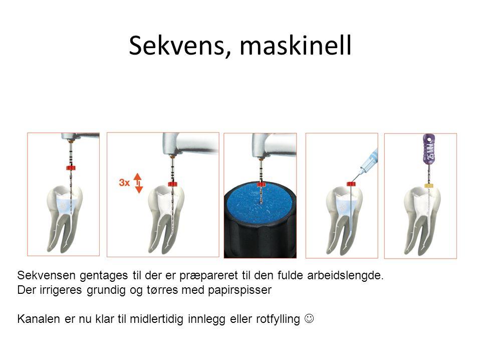 Sekvens, maskinell Sekvensen gentages til der er præpareret til den fulde arbeidslengde. Der irrigeres grundig og tørres med papirspisser Kanalen er n