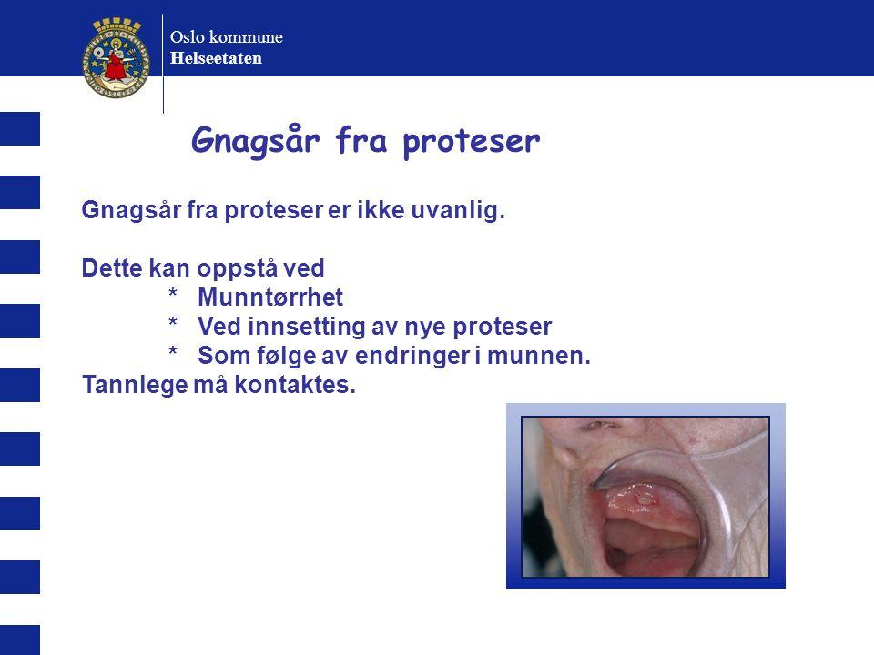 Oslo kommune Helseetaten Gnagsår fra proteser Gnagsår fra proteser er ikke uvanlig.