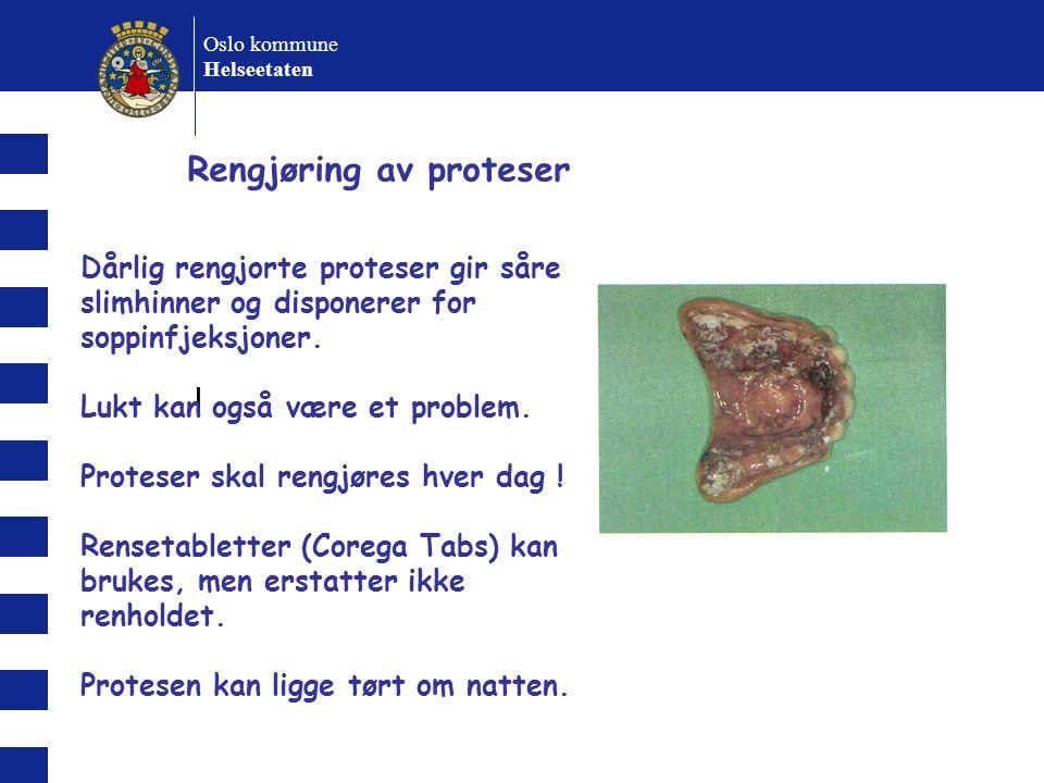 l Oslo kommune Helseetaten Rengjøring av proteser Dårlig rengjorte proteser gir såre slimhinner og disponerer for soppinfjeksjoner.