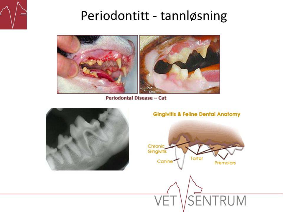 Periodontitt - tannløsning