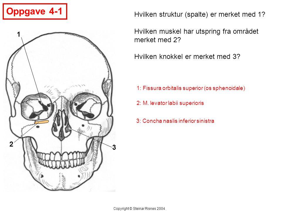 Oppgave 4-1 1 2 3 Hvilken struktur (spalte) er merket med 1? Hvilken muskel har utspring fra området merket med 2? Hvilken knokkel er merket med 3? Co