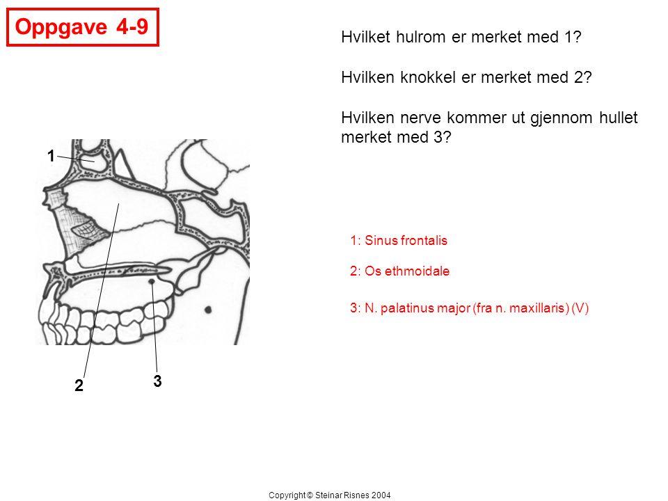 Oppgave 4-9 1 2 3 Hvilket hulrom er merket med 1? Hvilken knokkel er merket med 2? Hvilken nerve kommer ut gjennom hullet merket med 3? Copyright © St