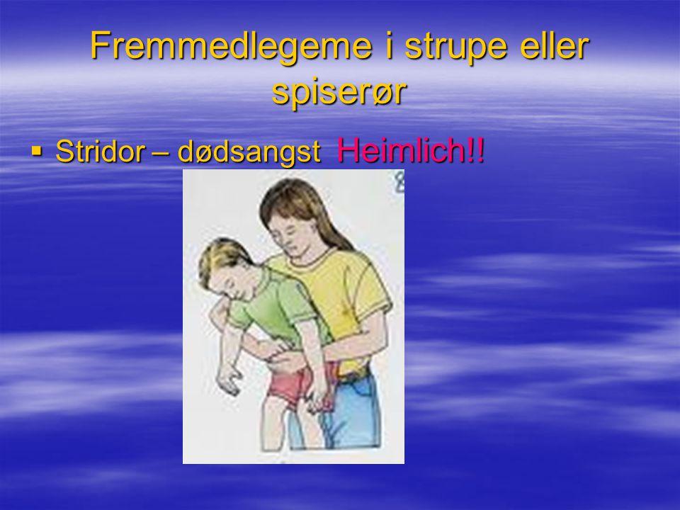 Fremmedlegeme i strupe eller spiserør  Stridor – dødsangst Heimlich!!