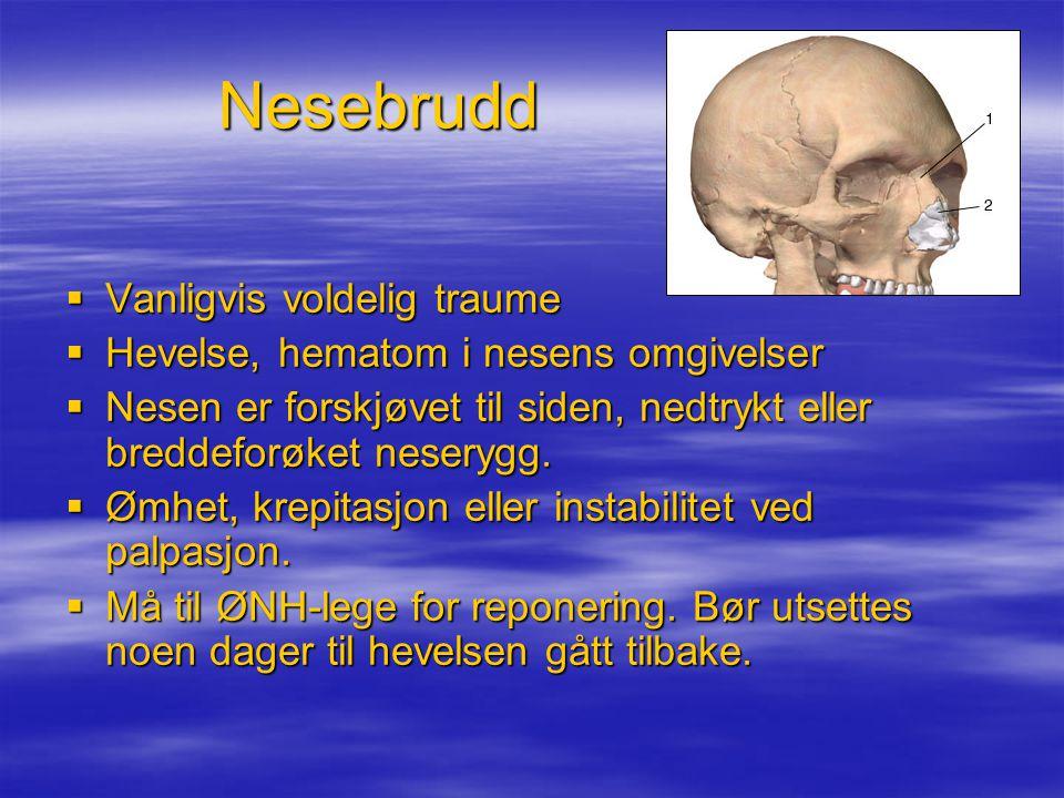 Nesebrudd  Vanligvis voldelig traume  Hevelse, hematom i nesens omgivelser  Nesen er forskjøvet til siden, nedtrykt eller breddeforøket neserygg.