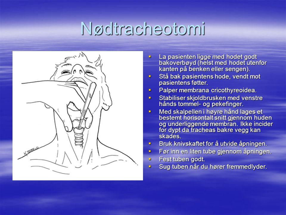 Nødtracheotomi  La pasienten ligge med hodet godt bakoverbøyd (helst med hodet utenfor kanten på benken eller sengen).