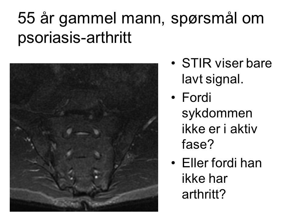 55 år gammel mann, spørsmål om psoriasis-arthritt •STIR viser bare lavt signal.