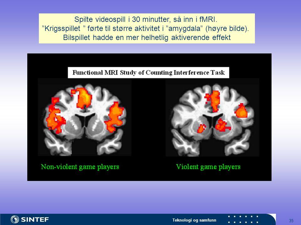 """Teknologi og samfunn 35 Spilte videospill i 30 minutter, så inn i fMRI. """"Krigsspillet """" førte til større aktivitet i """"amygdala"""" (høyre bilde). Bilspil"""