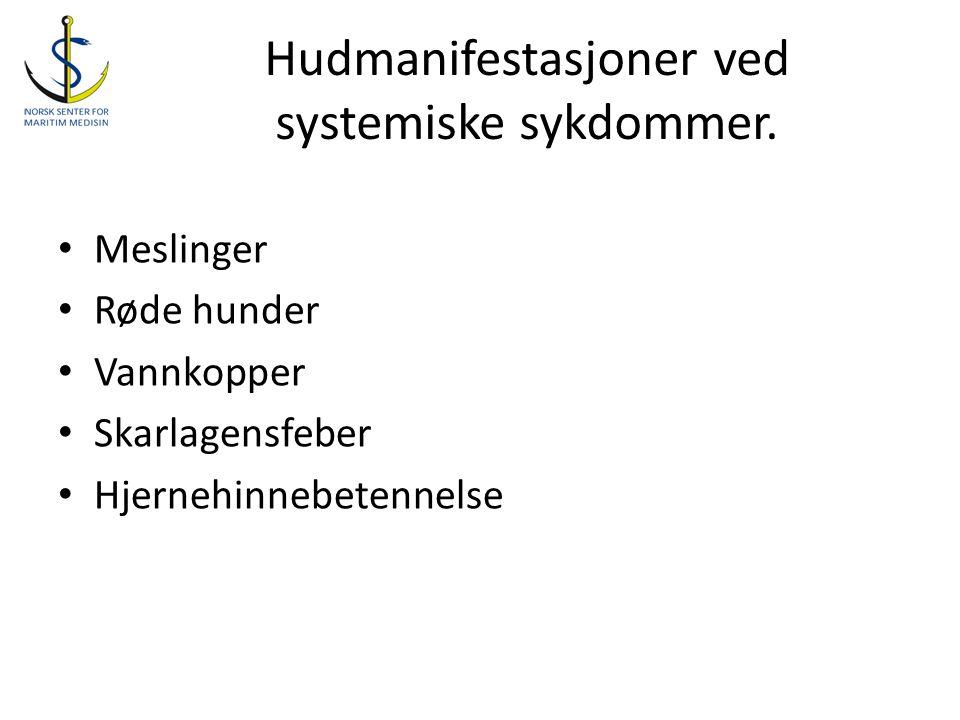Hudmanifestasjoner ved systemiske sykdommer. • Meslinger • Røde hunder • Vannkopper • Skarlagensfeber • Hjernehinnebetennelse