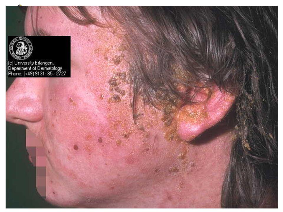 Elveblest Urticaria • Allergisk reaksjon • Kløende, uregelmessige flekker som er forhøyet, kanskje hvitlige sentralt med rødlig kant, eller helt rødlige • Neller • Årsak: Noe man har spist eller injisert.