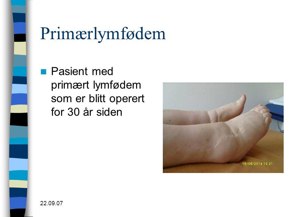 22.09.07 Primærlymfødem  Pasient med primært lymfødem som er blitt operert for 30 år siden