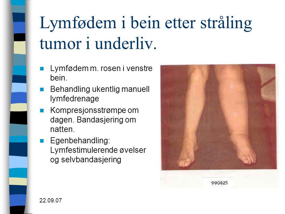 22.09.07 Lymfødem i bein etter stråling tumor i underliv.  Lymfødem m. rosen i venstre bein.  Behandling ukentlig manuell lymfedrenage  Kompresjons