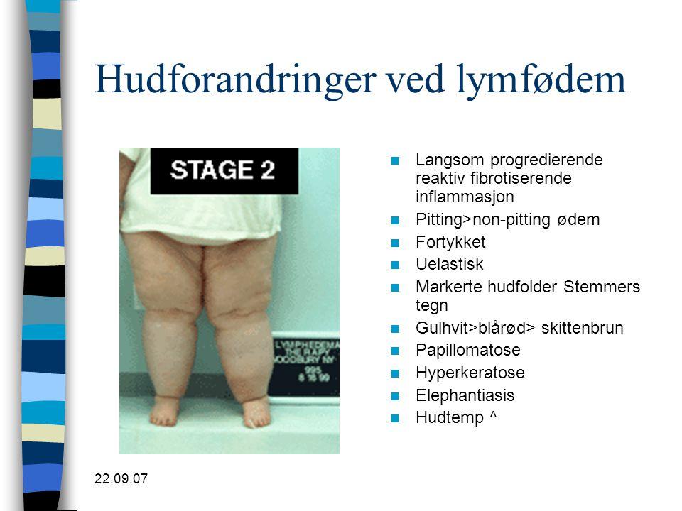22.09.07 Hudforandringer ved lymfødem  Langsom progredierende reaktiv fibrotiserende inflammasjon  Pitting>non-pitting ødem  Fortykket  Uelastisk