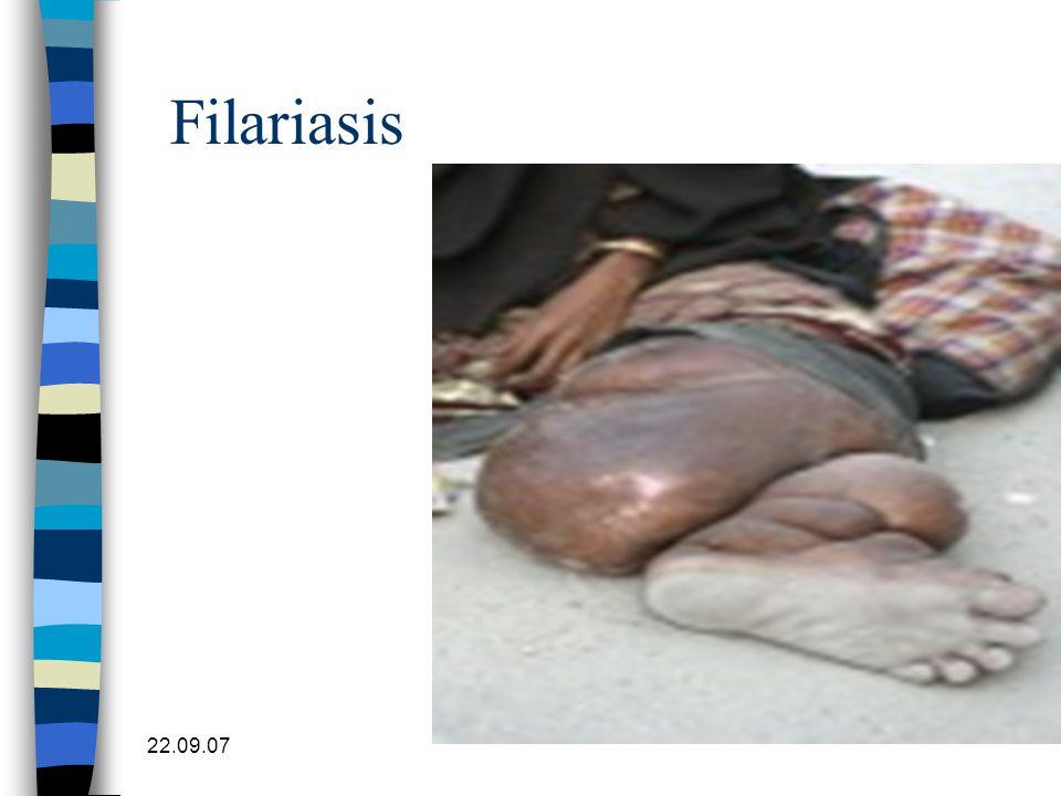 22.09.07 Filariasis