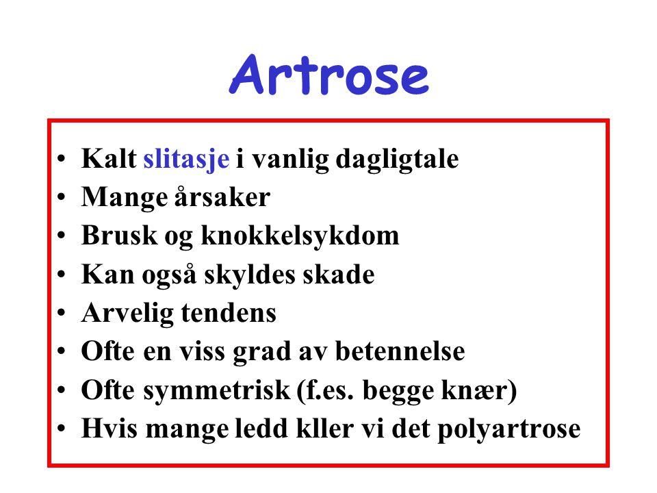 Artrose •Kalt slitasje i vanlig dagligtale •Mange årsaker •Brusk og knokkelsykdom •Kan også skyldes skade •Arvelig tendens •Ofte en viss grad av beten