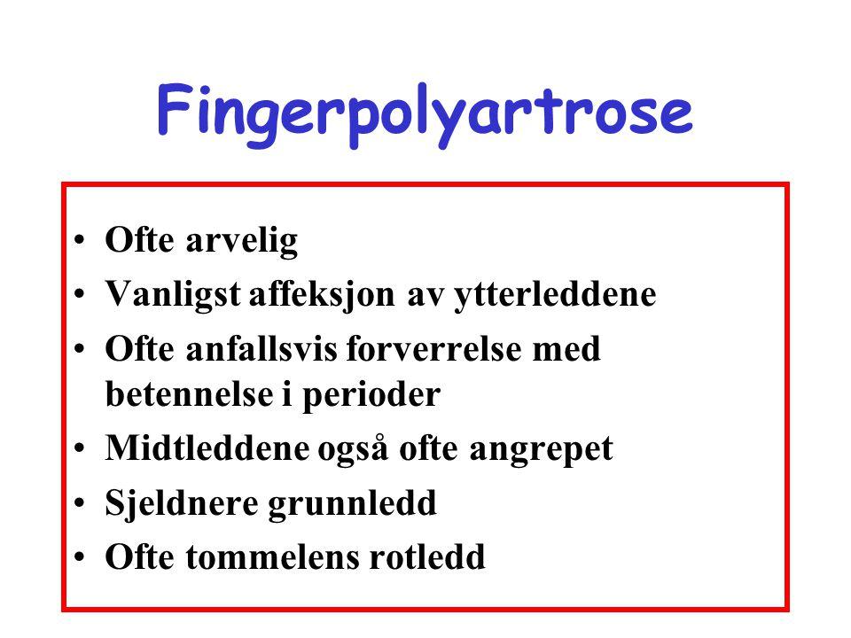 Fingerpolyartrose •Ofte arvelig •Vanligst affeksjon av ytterleddene •Ofte anfallsvis forverrelse med betennelse i perioder •Midtleddene også ofte angr