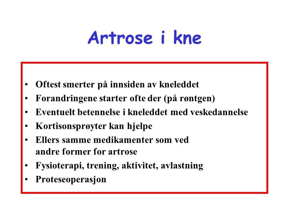 Artrose i kne •Oftest smerter på innsiden av kneleddet •Forandringene starter ofte der (på røntgen) •Eventuelt betennelse i kneleddet med veskedannels