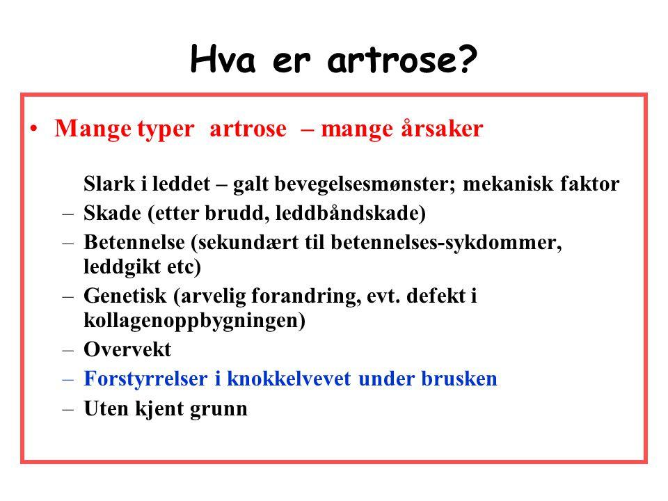 Artrose Ikke Slitasjegikt