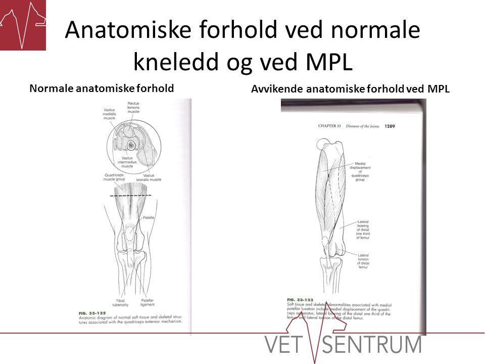 Anatomiske forhold ved normale kneledd og ved MPL Normale anatomiske forhold Avvikende anatomiske forhold ved MPL