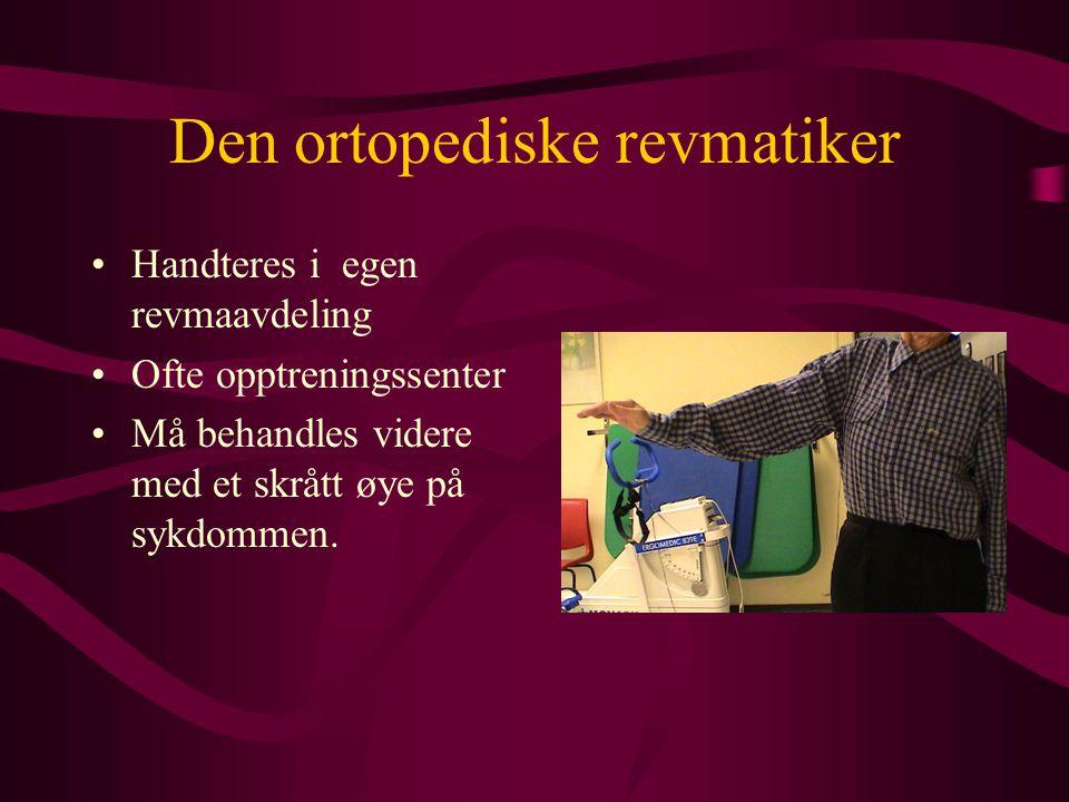 Den ortopediske revmatiker •Handteres i egen revmaavdeling •Ofte opptreningssenter •Må behandles videre med et skrått øye på sykdommen.