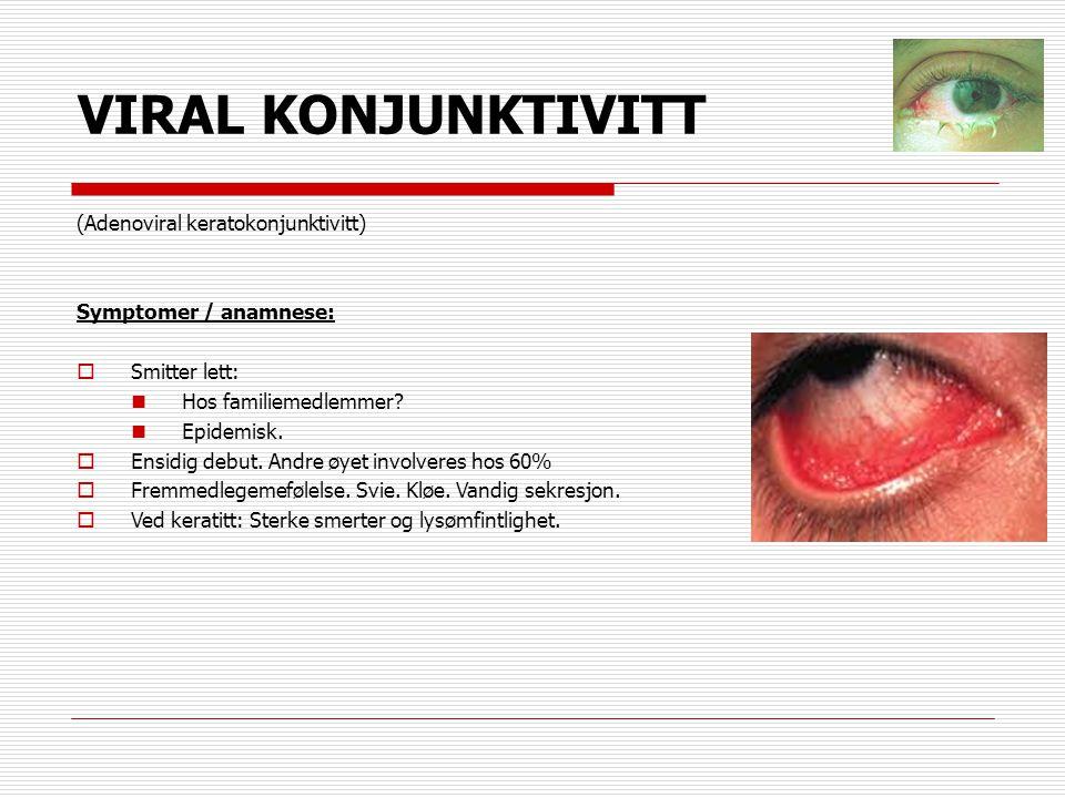 VIRAL KONJUNKTIVITT (Adenoviral keratokonjunktivitt) Symptomer / anamnese:  Smitter lett:  Hos familiemedlemmer?  Epidemisk.  Ensidig debut. Andre