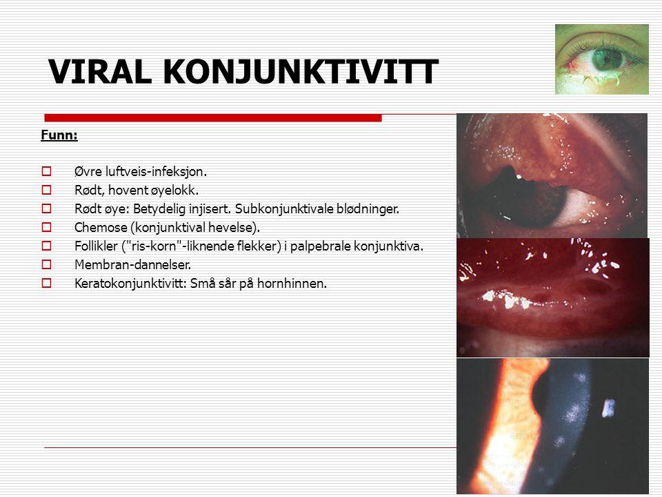 VIRAL KONJUNKTIVITT Funn:  Øvre luftveis-infeksjon.  Rødt, hovent øyelokk.  Rødt øye: Betydelig injisert. Subkonjunktivale blødninger.  Chemose (k