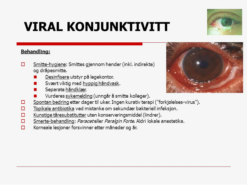 VIRAL KONJUNKTIVITT Behandling:  Smitte-hygiene: Smittes gjennom hender (inkl. indirekte) og dråpesmitte.  Desinfisere utstyr på legekontor.  Svært