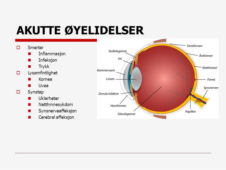AKUTTE ØYELIDELSER  Smerter  Inflammasjon  Infeksjon  Trykk  Lysømfintlighet  Kornea  Uvea  Synstap  Uklarheter  Netthinnesykdom  Synsnerve