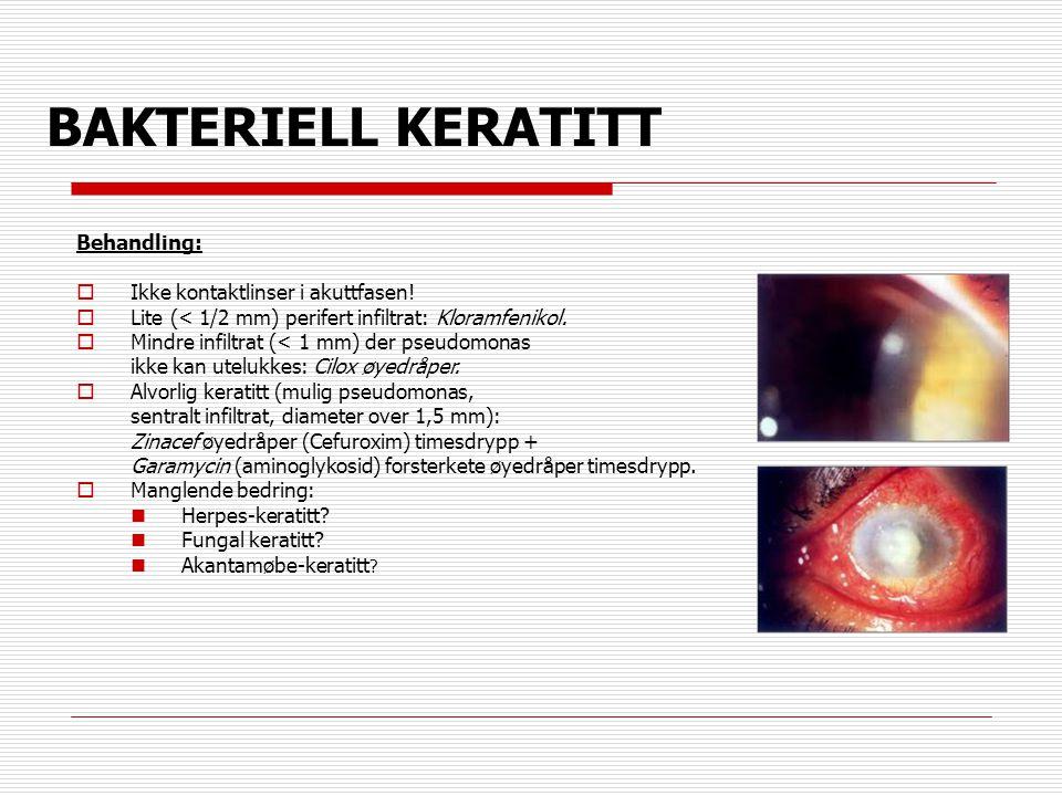 BAKTERIELL KERATITT Behandling:  Ikke kontaktlinser i akuttfasen!  Lite (< 1/2 mm) perifert infiltrat: Kloramfenikol.  Mindre infiltrat (< 1 mm) de