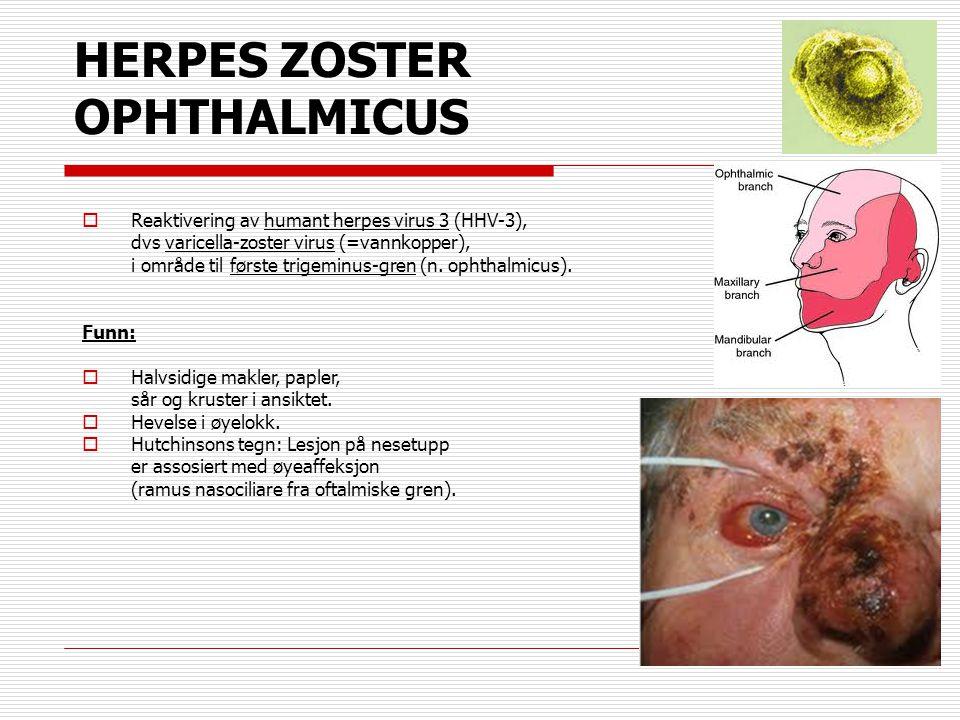 HERPES ZOSTER OPHTHALMICUS  Reaktivering av humant herpes virus 3 (HHV-3), dvs varicella-zoster virus (=vannkopper), i område til første trigeminus-g