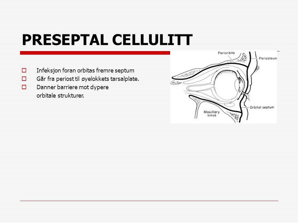 PRESEPTAL CELLULITT  Infeksjon foran orbitas fremre septum  Går fra periost til øyelokkets tarsalplate.  Danner barriere mot dypere orbitale strukt