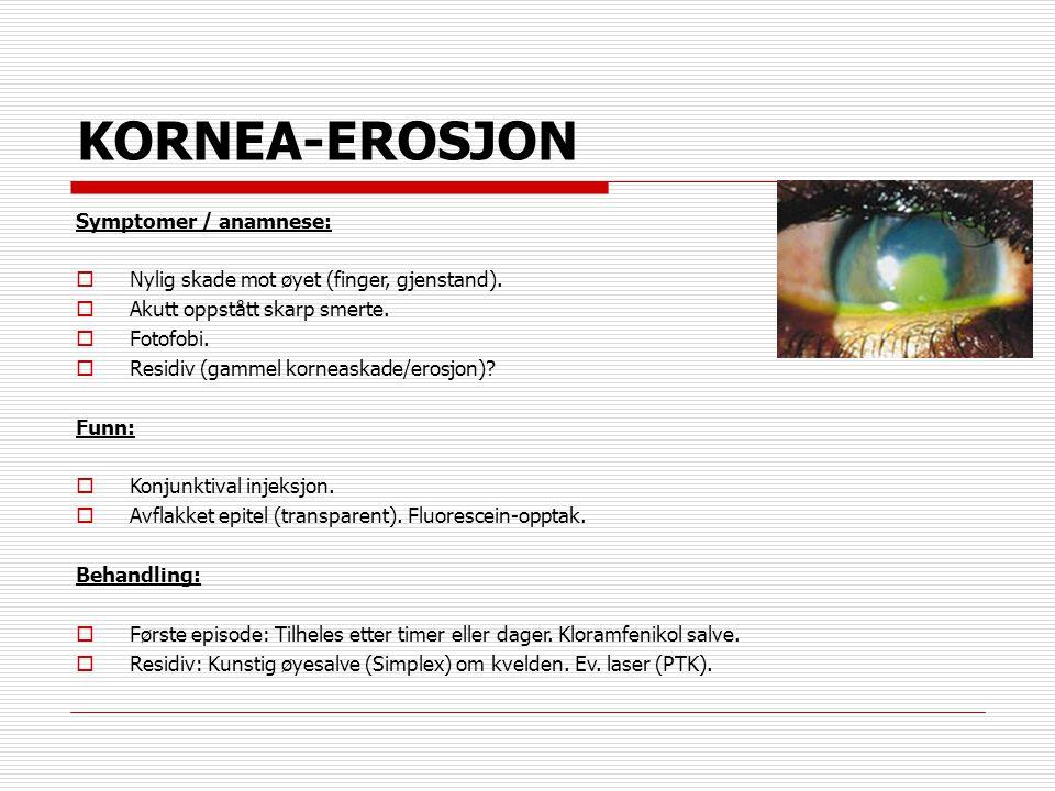 KORNEA-EROSJON Symptomer / anamnese:  Nylig skade mot øyet (finger, gjenstand).  Akutt oppstått skarp smerte.  Fotofobi.  Residiv (gammel korneask
