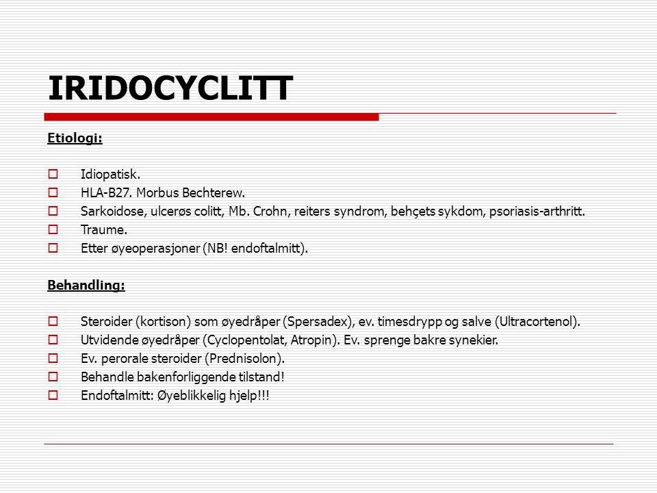 IRIDOCYCLITT Etiologi:  Idiopatisk.  HLA-B27. Morbus Bechterew.  Sarkoidose, ulcerøs colitt, Mb. Crohn, reiters syndrom, behçets sykdom, psoriasis-