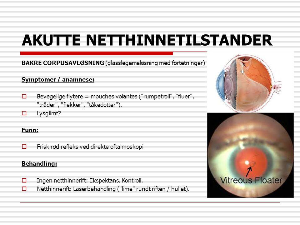 AKUTTE NETTHINNETILSTANDER BAKRE CORPUSAVLØSNING (glasslegemeløsning med fortetninger) Symptomer / anamnese:  Bevegelige flytere = mouches volantes (