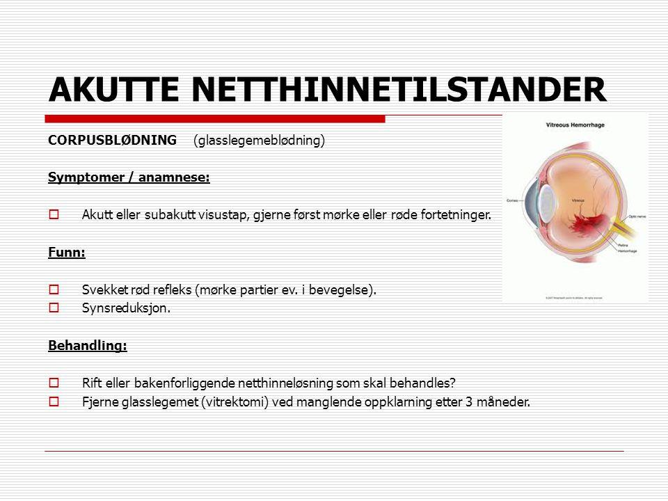 AKUTTE NETTHINNETILSTANDER CORPUSBLØDNING (glasslegemeblødning) Symptomer / anamnese:  Akutt eller subakutt visustap, gjerne først mørke eller røde f